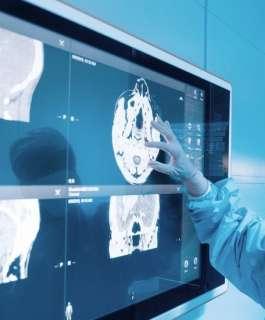 علماء: السكتات الدماغية من المضاعفات النادرة لكورونا