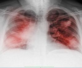 """دراسة جديدة تفسر سبب انخفاض مستويات الأكسجين لدى مرضى """"كوفيد-19"""""""