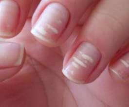 البقع البيضاء على الأظافر مؤشر على الإصابة بأمراض خطيرة