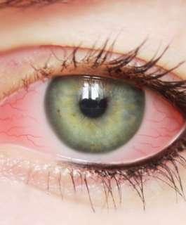 6 نصائح للتخلص من تهيج العيون الحمراء